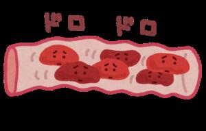 血管内の赤血球がドロドロしてて動きが鈍いイラスト