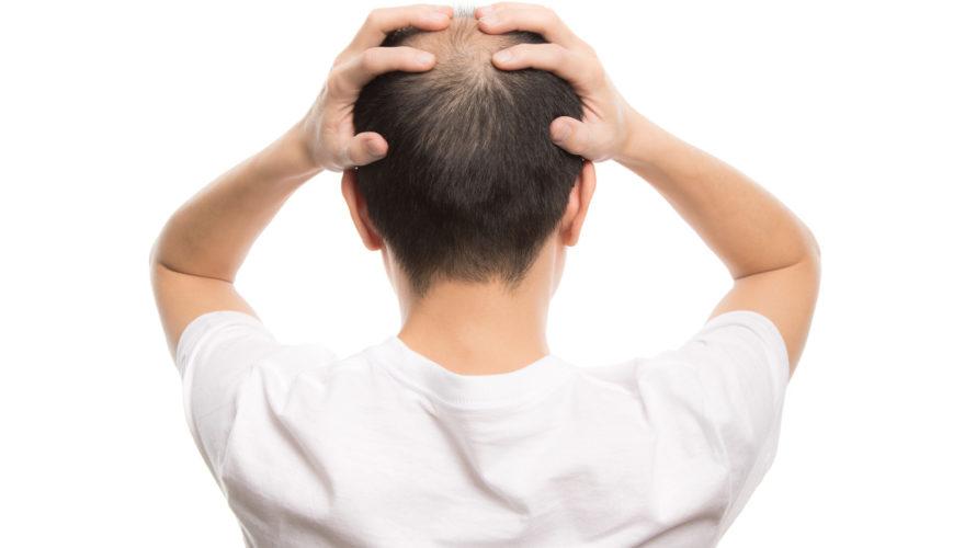髪の毛の薄さを気にしている男性